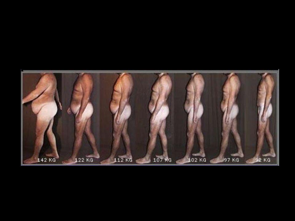 Outras complicações O excesso de peso pode levar ao aumento do colesterol, triglicerídeos e redução da fração HDL colesterol ( colesterol bom ).