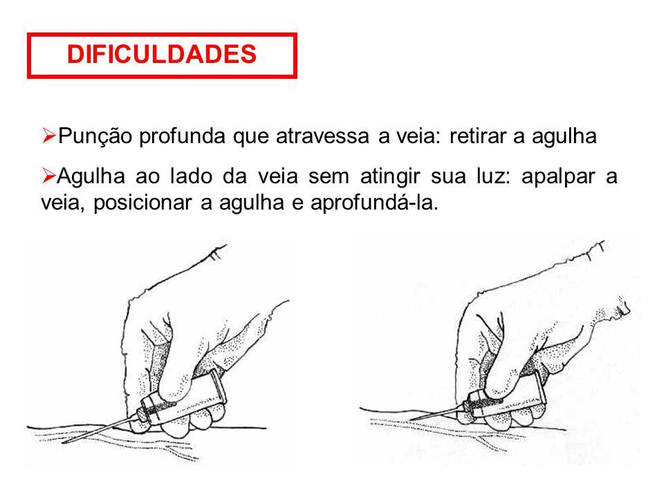 DIFICULDADES  Punção profunda que atravessa a veia: retirar a agulha  Agulha ao lado da veia sem atingir sua luz: apalpar a veia, posicionar a agulha e aprofundá-la.