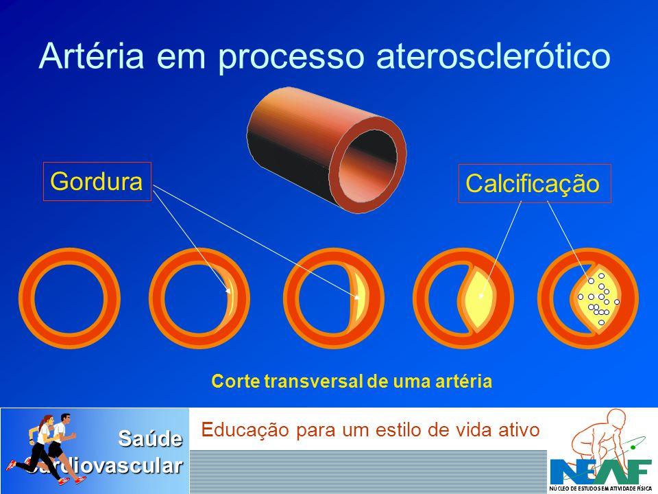 SaúdeCardiovascular Educação para um estilo de vida ativo Corte transversal de uma artéria Artéria em processo aterosclerótico Gordura Calcificação