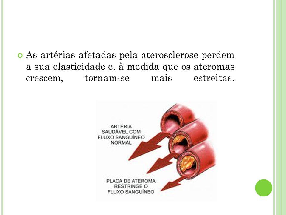 As artérias afetadas pela aterosclerose perdem a sua elasticidade e, à medida que os ateromas crescem, tornam-se mais estreitas.