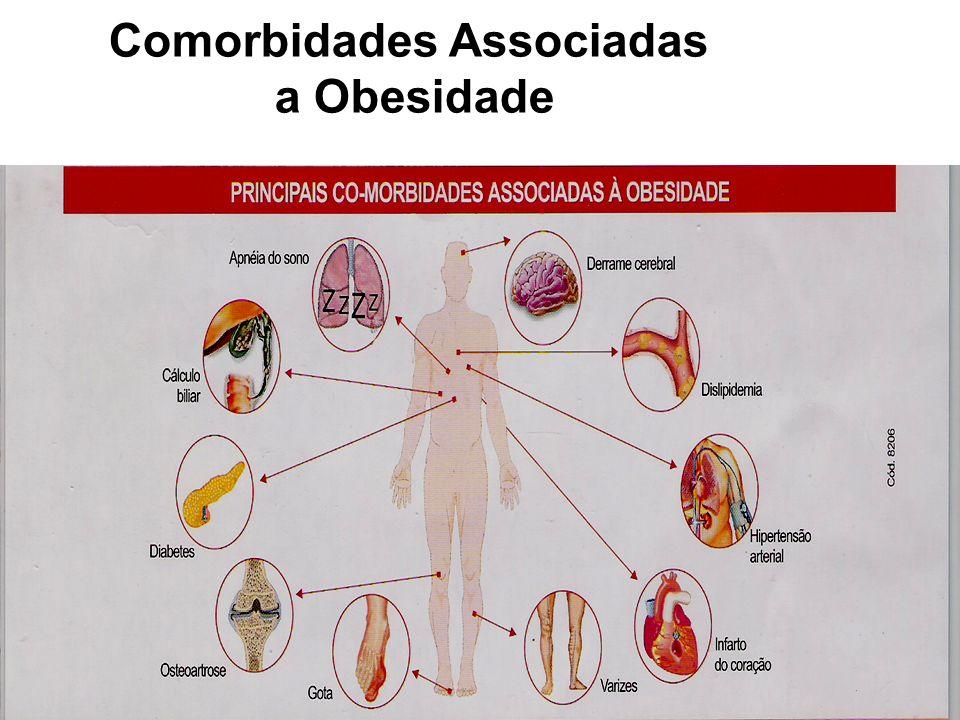 29 Tratamento da Obesidade É importante considerar a obesidade dentro da síndrome metabólica (obesidade, hipertensão, hiperinsulinismo, intolerância à glicose, hiperlipidemia) e também como fator de risco de doença coronariana (maior no sexo masculino).