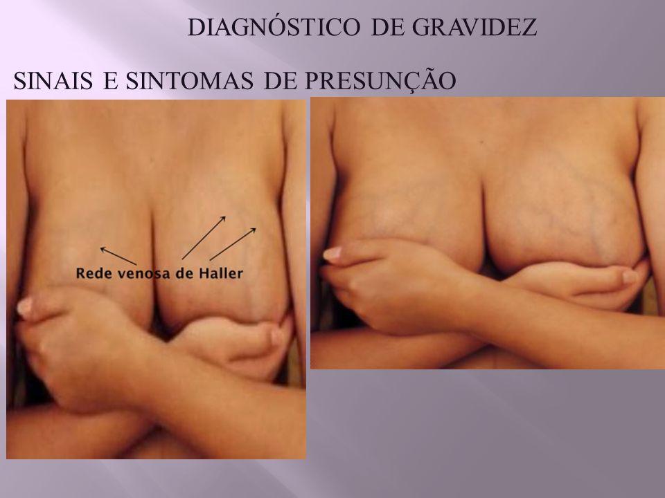 SINAIS E SINTOMAS DE PRESUNÇÃO DIAGNÓSTICO DE GRAVIDEZ