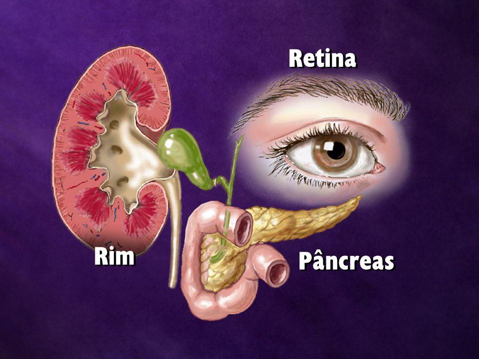 Retina Rim Pâncreas