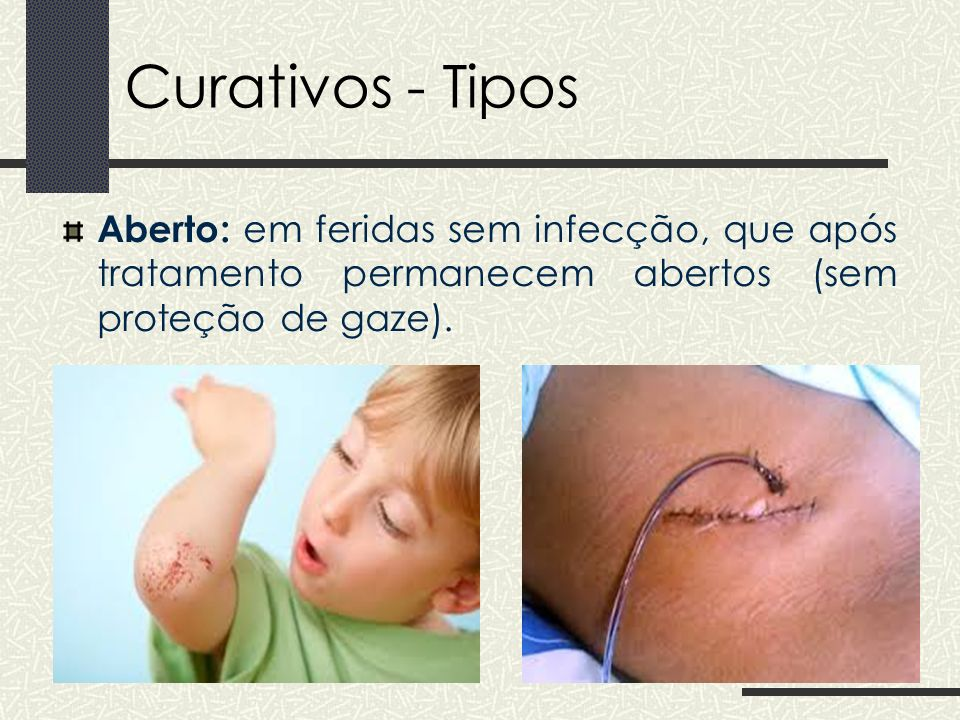 Curativos - Tipos Aberto: em feridas sem infecção, que após tratamento permanecem abertos (sem proteção de gaze).