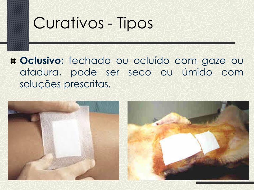 Curativos – Normas técnicas ATENÇÃO: Princípio: do mais limpo para o mais contaminado 1) Lesões fechadas/cirúrgicas : o leito da ferida primeiro e depois a borda.