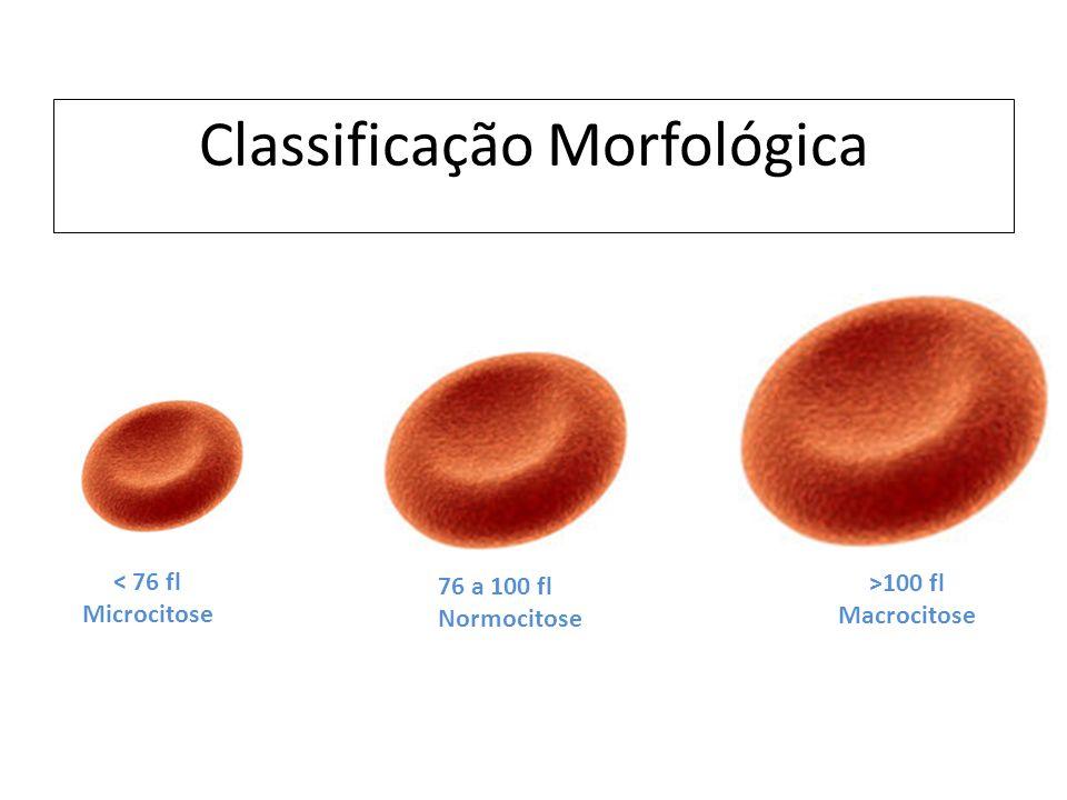 Classificação Morfológica 76 a 100 fl Normocitose < 76 fl Microcitose >100 fl Macrocitose