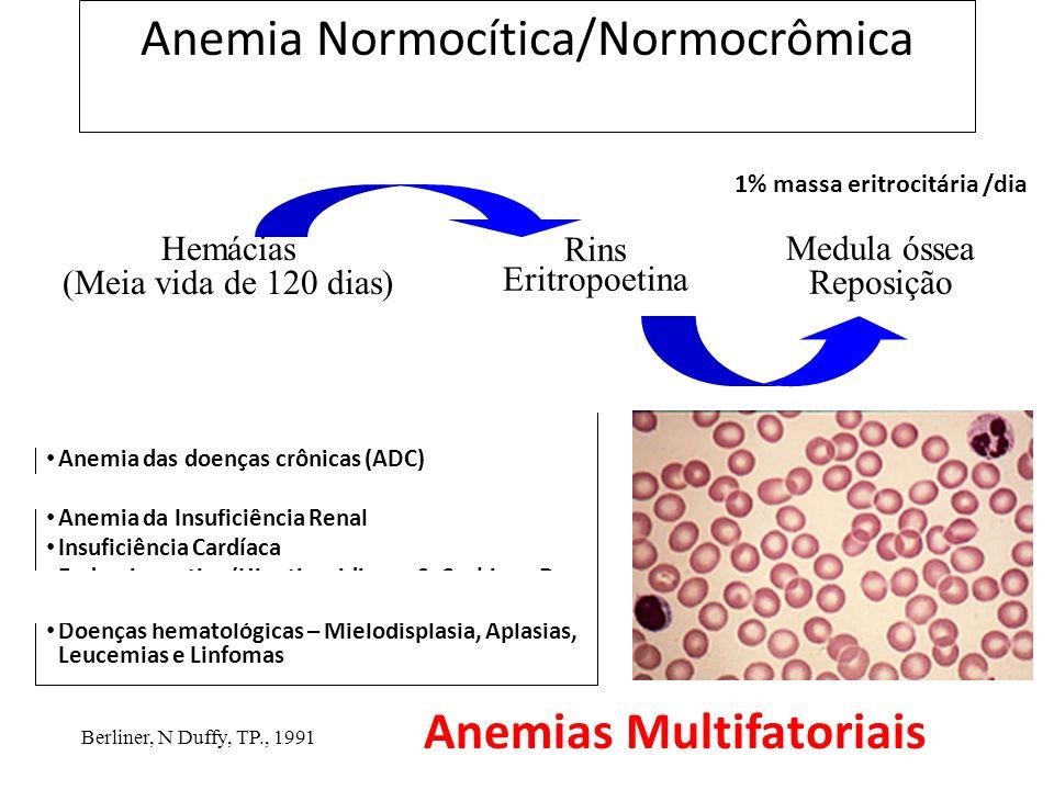 Anemia Normocítica/Normocrômica Hemorragias Anemia das doenças crônicas (ADC) Infecções Anemia da Insuficiência Renal Insuficiência Cardíaca Endocrinopatias (Hipotireoidismo, S.