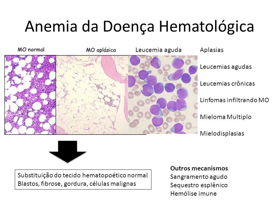 Anemia da Doença Hematológica Substituição do tecido hematopoético normal Blastos, fibrose, gordura, células malignas Aplasias Leucemias agudas Leucemias crônicas Linfomas infiltrando MO Mieloma Multiplo Mielodisplasias Leucemia aguda Outros mecanismos Sangramento agudo Sequestro esplênico Hemólise imune