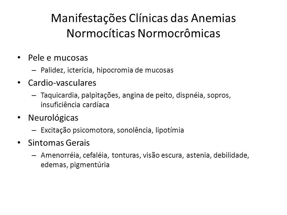 Manifestações Clínicas das Anemias Normocíticas Normocrômicas Pele e mucosas – Palidez, icterícia, hipocromia de mucosas Cardio-vasculares – Taquicardia, palpitações, angina de peito, dispnéia, sopros, insuficiência cardíaca Neurológicas – Excitação psicomotora, sonolência, lipotímia Sintomas Gerais – Amenorréia, cefaléia, tonturas, visão escura, astenia, debilidade, edemas, pigmentúria