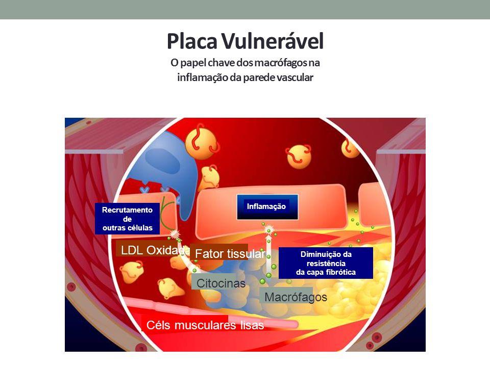 Placa Vulnerável O papel chave dos macrófagos na inflamação da parede vascular Recrutamento de outras células Diminuição da resistência da capa fibrót
