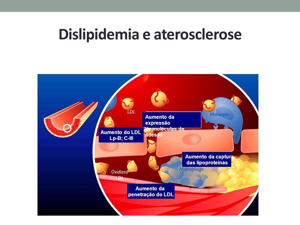 Dislipidemia e aterosclerose Aumento da expressão de moléculas de adesão Aumento do LDL Lp-B; C-III Aumento da captura das lipoproteínas Aumento da pe