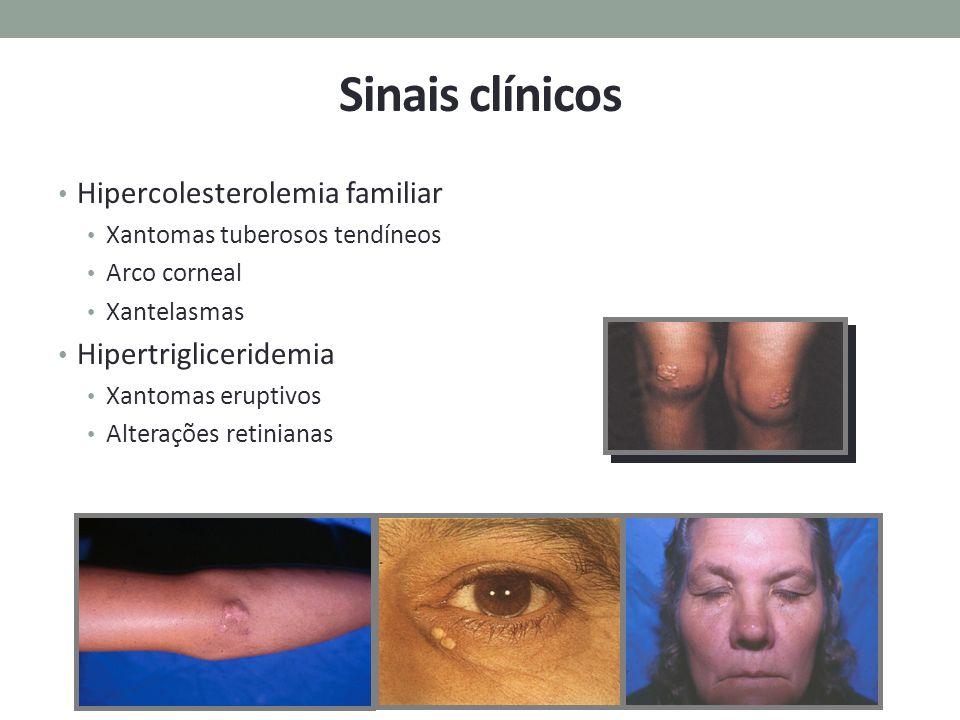 Sinais clínicos Hipercolesterolemia familiar Xantomas tuberosos tendíneos Arco corneal Xantelasmas Hipertrigliceridemia Xantomas eruptivos Alterações