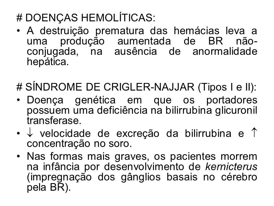 # DOENÇAS HEMOLÍTICAS: A destruição prematura das hemácias leva a uma produção aumentada de BR não- conjugada, na ausência de anormalidade hepática. #