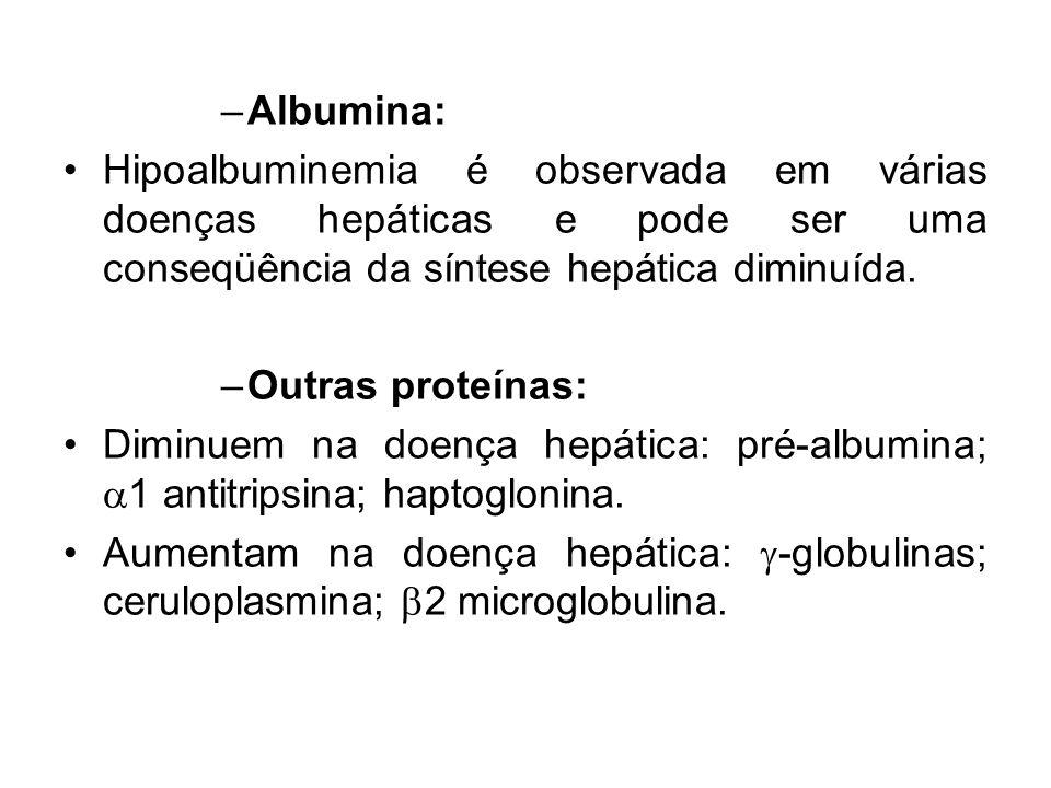 –Albumina: Hipoalbuminemia é observada em várias doenças hepáticas e pode ser uma conseqüência da síntese hepática diminuída. –Outras proteínas: Dimin