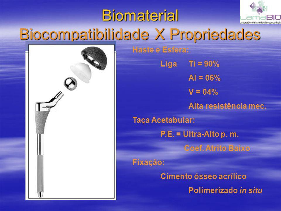 Biomaterial Biocompatibilidade X Propriedades Haste e Esfera: Liga Ti = 90% Al = 06% V = 04% Alta resistência mec. Taça Acetabular: P.E. = Ultra-Alto
