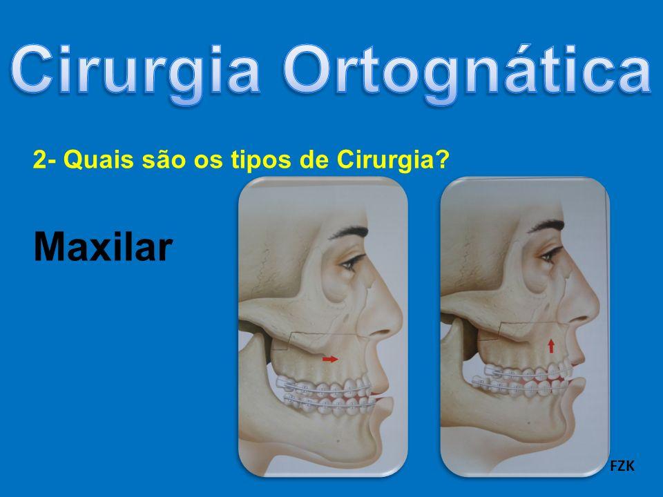 2- Quais são os tipos de Cirurgia? Maxilar FZK