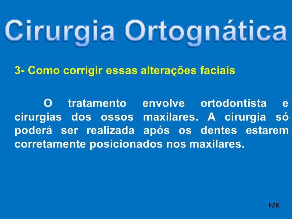 3- Como corrigir essas alterações faciais O tratamento envolve ortodontista e cirurgias dos ossos maxilares. A cirurgia só poderá ser realizada após o