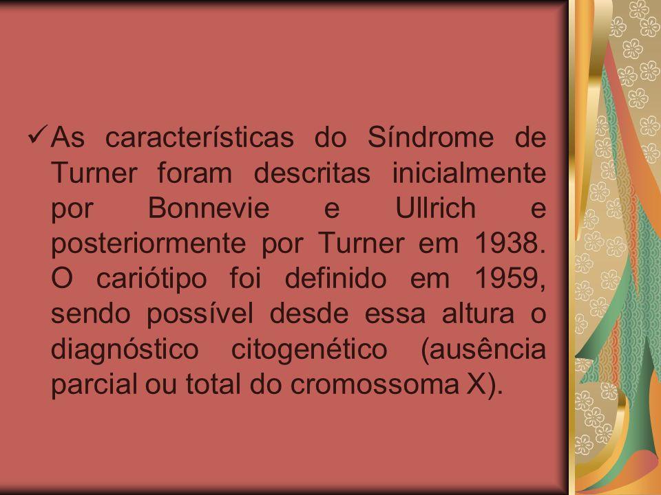 ETIOLOGIA A ST é uma anomalia genética decorrente da ausência ou deficiência de um dos cromossomos sexuais.