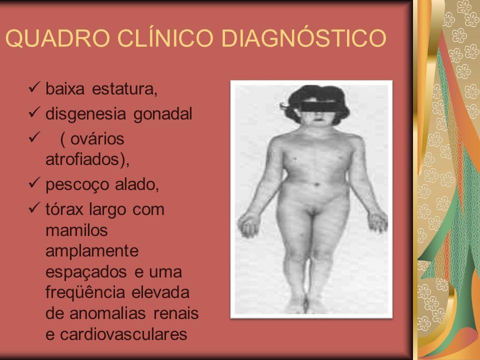 QUADRO CLÍNICO DIAGNÓSTICO baixa estatura, disgenesia gonadal ( ovários atrofiados), pescoço alado, tórax largo com mamilos amplamente espaçados e uma freqüência elevada de anomalias renais e cardiovasculares