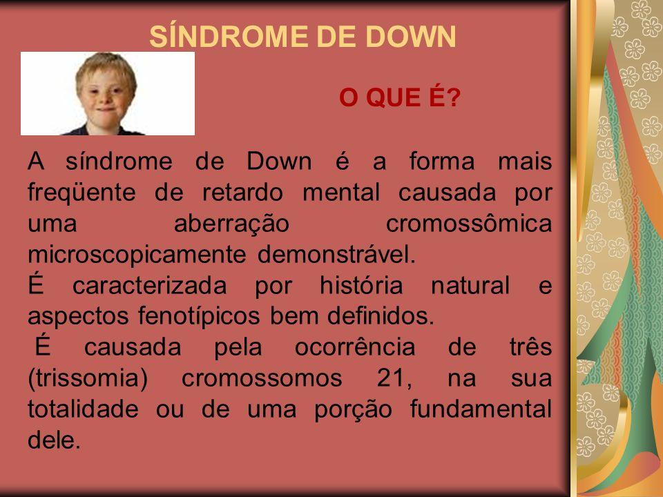 SÍNDROME DE DOWN A síndrome de Down é a forma mais freqüente de retardo mental causada por uma aberração cromossômica microscopicamente demonstrável.