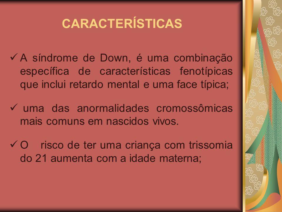 CARACTERÍSTICAS A síndrome de Down, é uma combinação específica de características fenotípicas que inclui retardo mental e uma face típica; uma das anormalidades cromossômicas mais comuns em nascidos vivos.