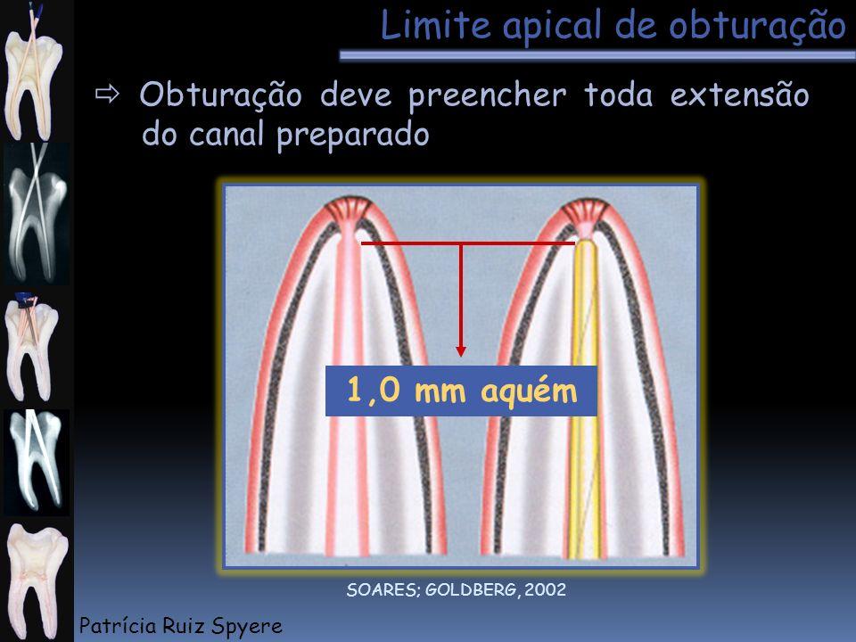 Limite apical de obturação Obturação deve preencher toda extensão do canal preparado 1,0 mm aquém SOARES; GOLDBERG, 2002 Patrícia Ruiz Spyere