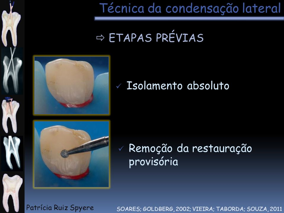 Remoção da restauração provisória Isolamento absoluto Técnica da condensação lateral ETAPAS PRÉVIAS SOARES; GOLDBERG, 2002; VIEIRA; TABORDA; SOUZA, 20