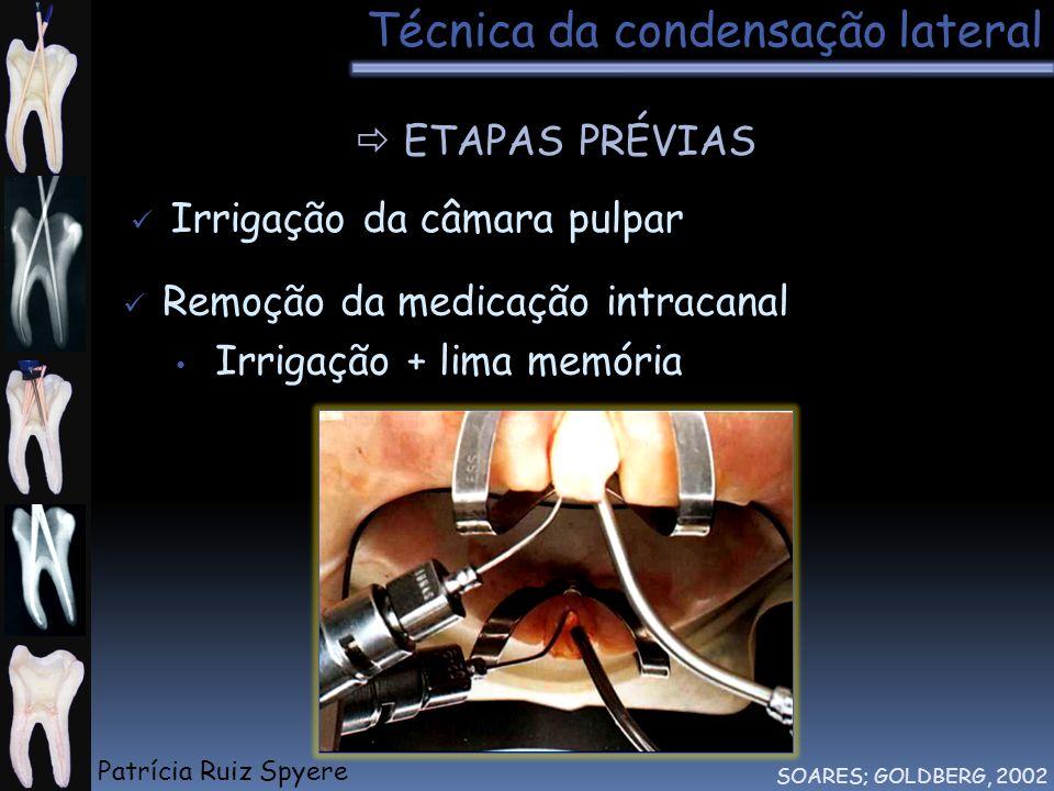 Técnica da condensação lateral ETAPAS PRÉVIAS SOARES; GOLDBERG, 2002 Remoção da medicação intracanal Irrigação + lima memória Irrigação da câmara pulp