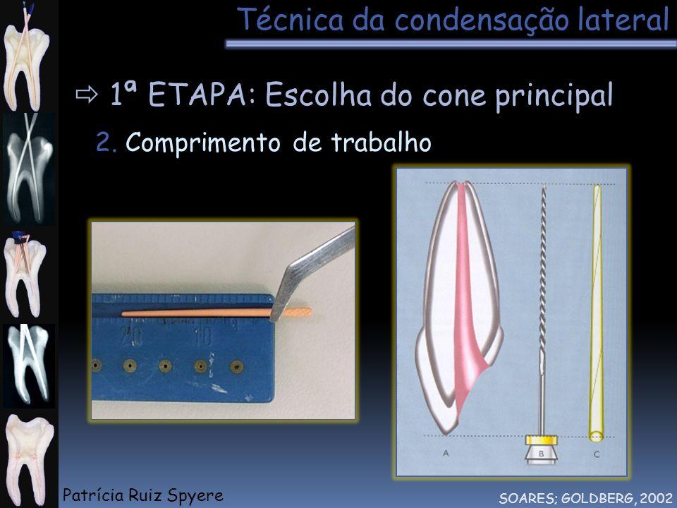 Técnica da condensação lateral SOARES; GOLDBERG, 2002 1ª ETAPA: Escolha do cone principal 2. Comprimento de trabalho Patrícia Ruiz Spyere
