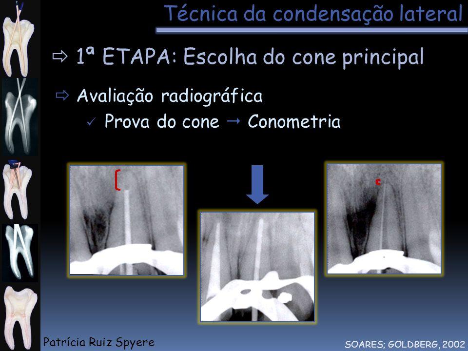 Técnica da condensação lateral SOARES; GOLDBERG, 2002 1ª ETAPA: Escolha do cone principal Avaliação radiográfica Prova do cone Conometria Tátil Patríc
