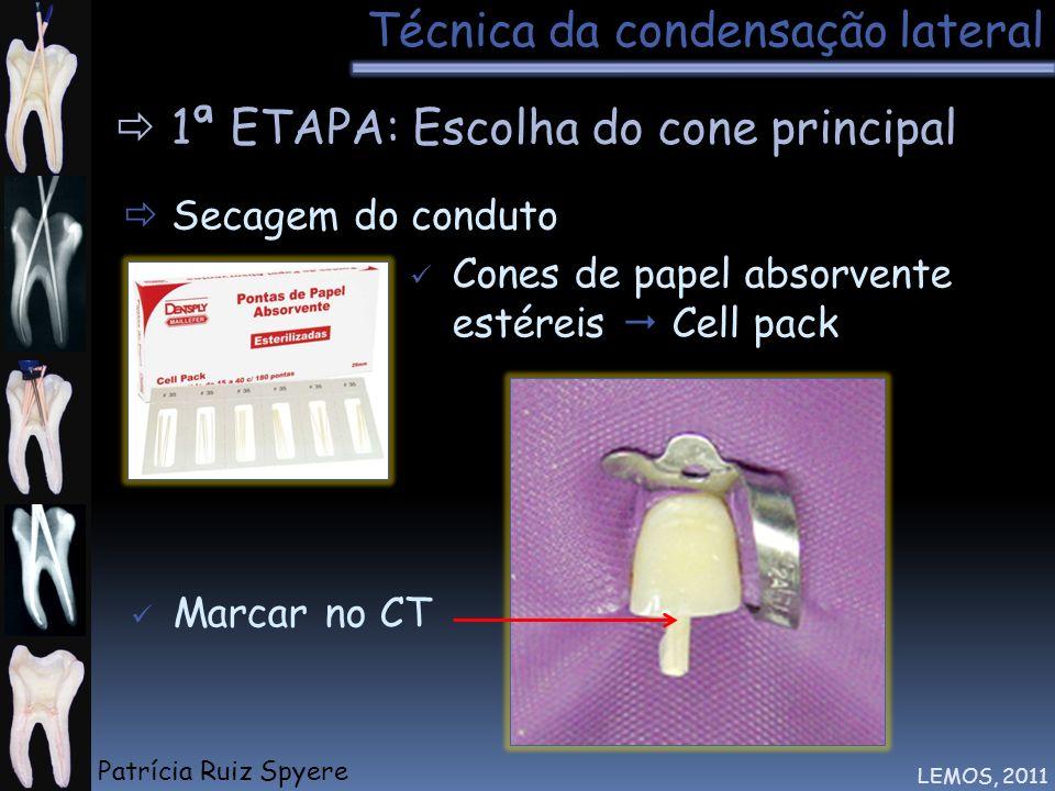 Técnica da condensação lateral LEMOS, 2011 1ª ETAPA: Escolha do cone principal Secagem do conduto Tátil Cones de papel absorvente estéreis Cell pack M