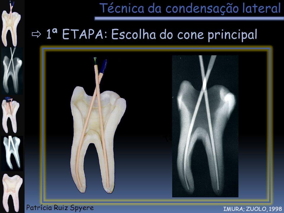Técnica da condensação lateral IMURA; ZUOLO, 1998 1ª ETAPA: Escolha do cone principal Tátil Patrícia Ruiz Spyere
