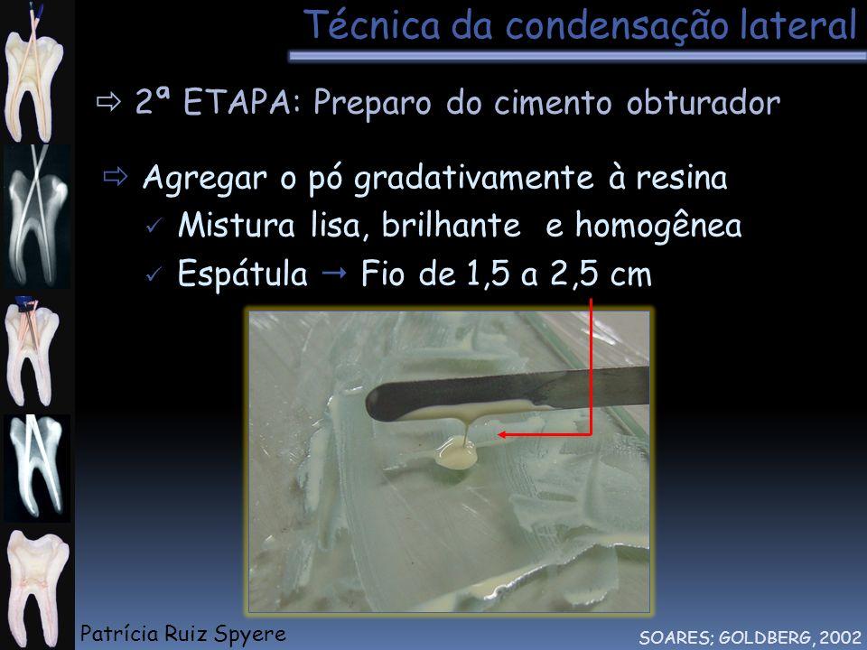 Técnica da condensação lateral SOARES; GOLDBERG, 2002 2ª ETAPA: Preparo do cimento obturador Agregar o pó gradativamente à resina Mistura lisa, brilha