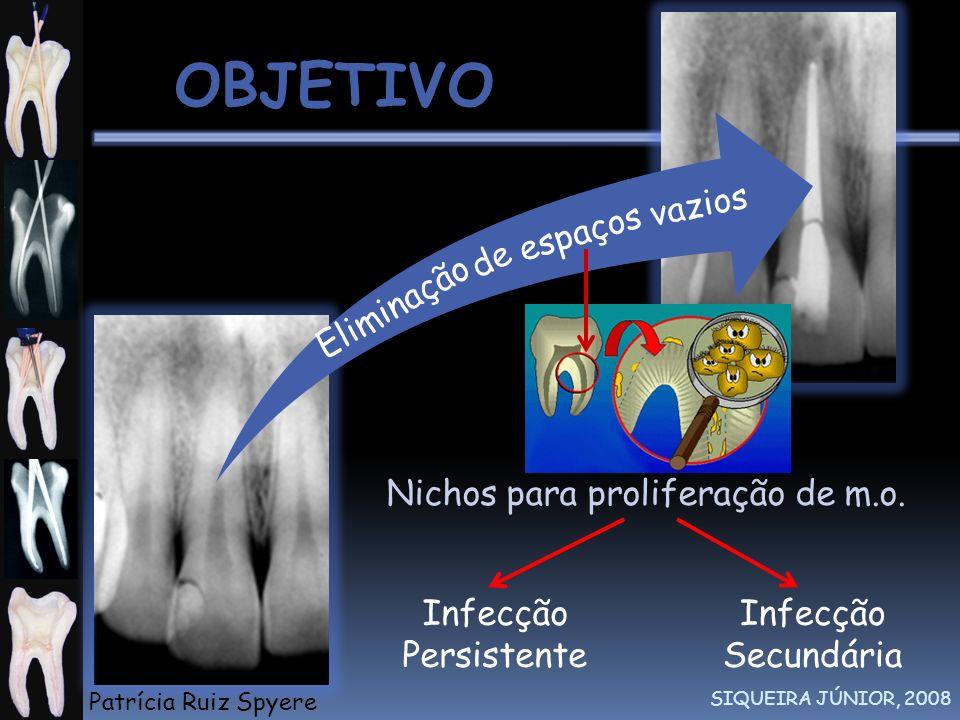 OBJETIVO SIQUEIRA JÚNIOR, 2008 GUTMANN et al., 1997 Eliminação espaços vazios de Infecção Persistente Infecção Secundária Nichos para proliferação de