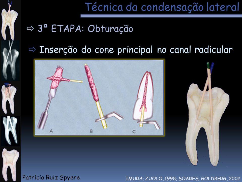 Técnica da condensação lateral IMURA; ZUOLO, 1998; SOARES; GOLDBERG, 2002 3ª ETAPA: Obturação Inserção do cone principal no canal radicular Patrícia R