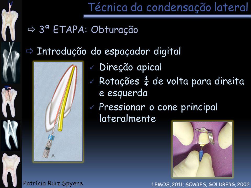 Técnica da condensação lateral LEMOS, 2011; SOARES; GOLDBERG, 2002 3ª ETAPA: Obturação Introdução do espaçador digital Direção apical Rotações ¼ de vo