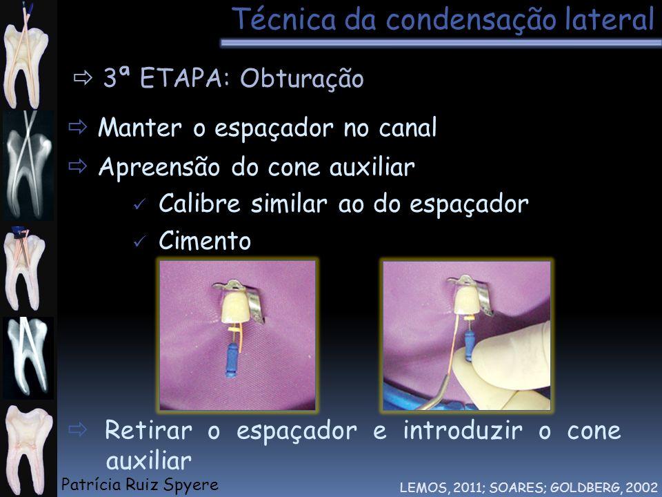 Técnica da condensação lateral LEMOS, 2011; SOARES; GOLDBERG, 2002 3ª ETAPA: Obturação Manter o espaçador no canal Apreensão do cone auxiliar Calibre