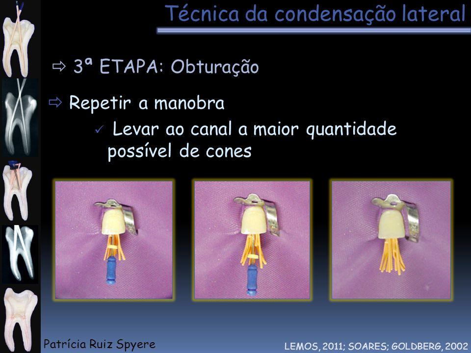 Técnica da condensação lateral LEMOS, 2011; SOARES; GOLDBERG, 2002 3ª ETAPA: Obturação Repetir a manobra Levar ao canal a maior quantidade possível de