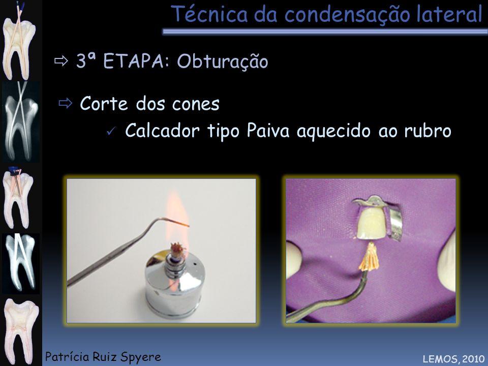 Técnica da condensação lateral LEMOS, 2010 3ª ETAPA: Obturação Corte dos cones Calcador tipo Paiva aquecido ao rubro Patrícia Ruiz Spyere