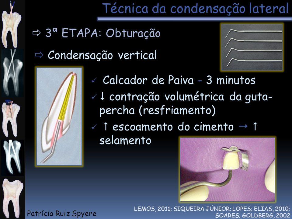 Técnica da condensação lateral LEMOS, 2011; SIQUEIRA JÚNIOR; LOPES; ELIAS, 2010; SOARES; GOLDBERG, 2002 3ª ETAPA: Obturação Condensação vertical Calca