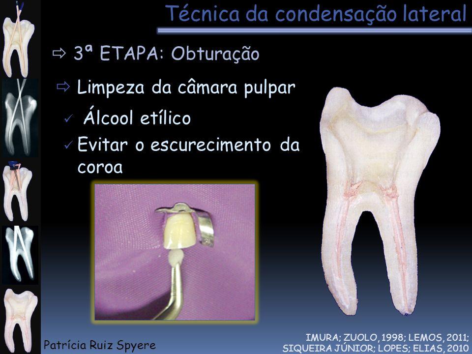 Técnica da condensação lateral IMURA; ZUOLO, 1998; LEMOS, 2011; SIQUEIRA JÚNIOR; LOPES; ELIAS, 2010 3ª ETAPA: Obturação Limpeza da câmara pulpar Álcoo