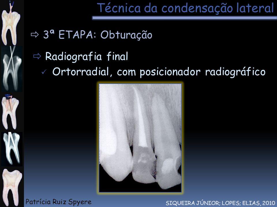 Técnica da condensação lateral SIQUEIRA JÚNIOR; LOPES; ELIAS, 2010 3ª ETAPA: Obturação Radiografia final Ortorradial, com posicionador radiográfico Pa