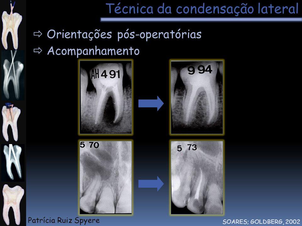 Técnica da condensação lateral SOARES; GOLDBERG, 2002 Orientações pós-operatórias Acompanhamento Patrícia Ruiz Spyere