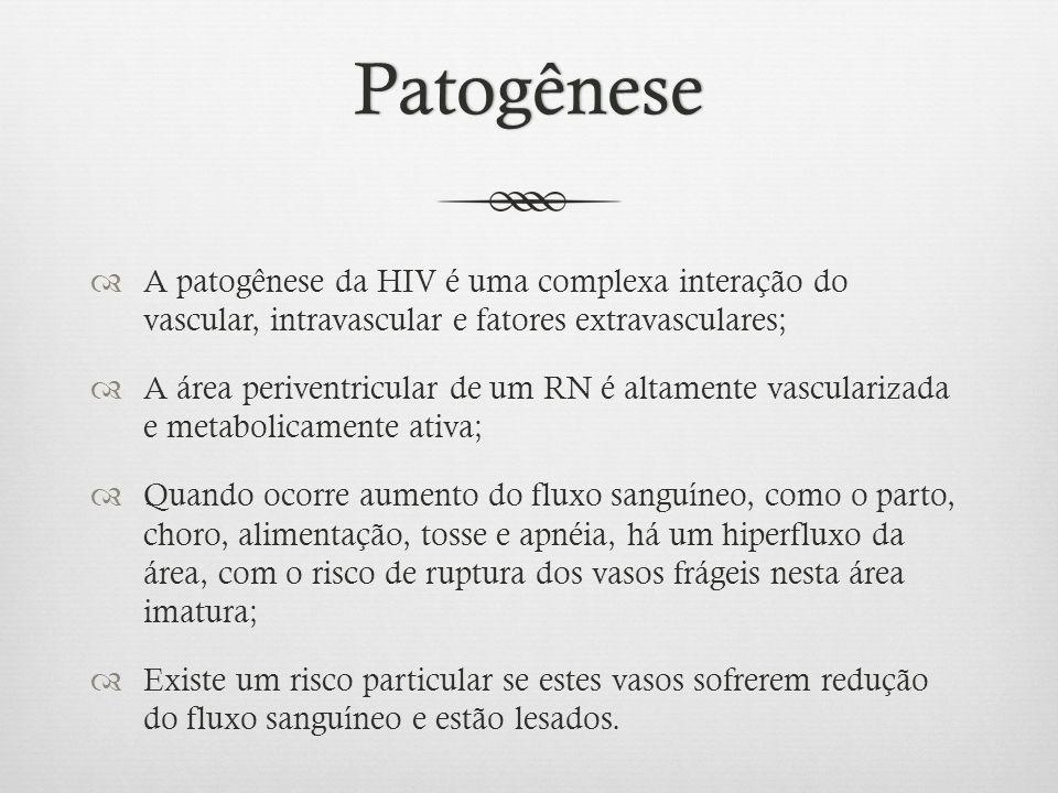 Patogênese A patogênese da HIV é uma complexa interação do vascular, intravascular e fatores extravasculares; A área periventricular de um RN é altame