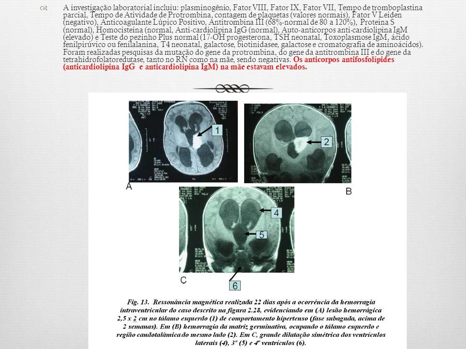 A investigação laboratorial incluiu: plasminogênio, Fator VIII, Fator IX, Fator VII, Tempo de tromboplastina parcial, Tempo de Atividade de Protrombin