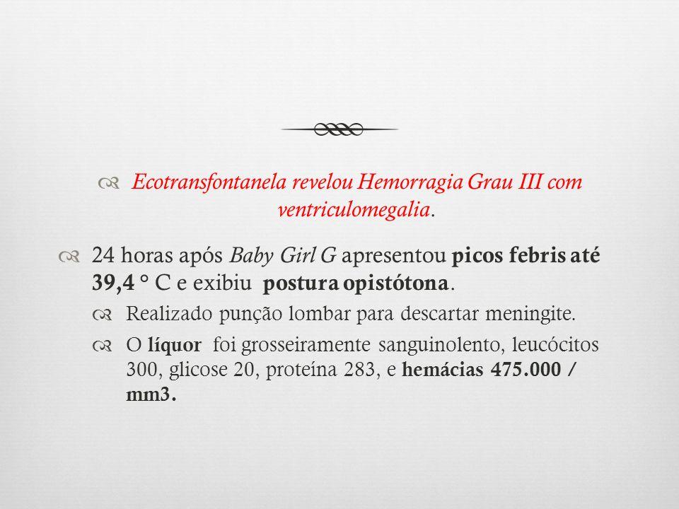 Ecotransfontanela revelou Hemorragia Grau III com ventriculomegalia. 24 horas após Baby Girl G apresentou picos febris até 39,4 ° C e exibiu postura o
