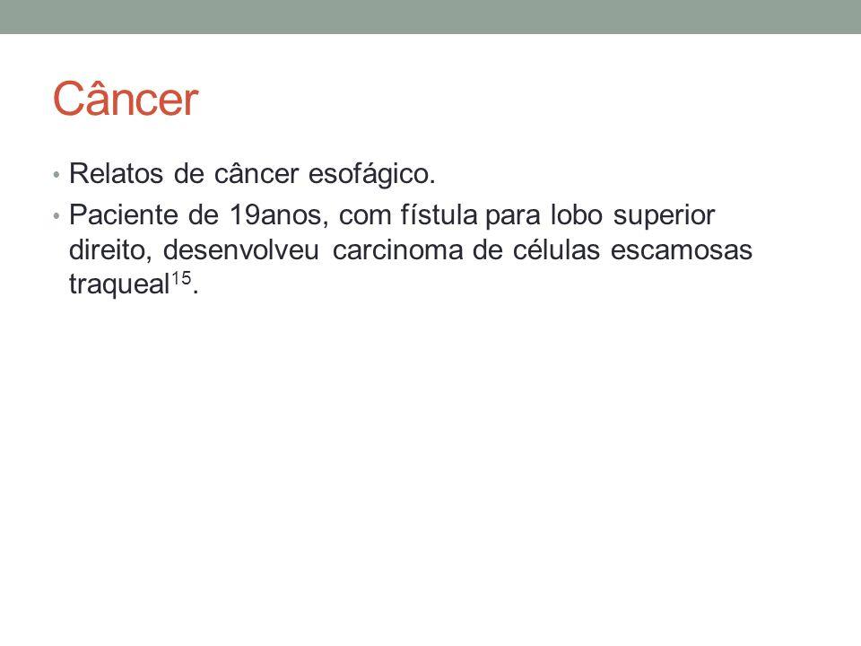 Câncer Relatos de câncer esofágico. Paciente de 19anos, com fístula para lobo superior direito, desenvolveu carcinoma de células escamosas traqueal 15