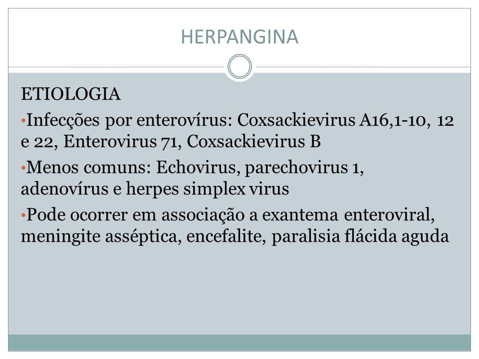 HERPANGINA ETIOLOGIA Infecções por enterovírus: Coxsackievirus A16,1-10, 12 e 22, Enterovirus 71, Coxsackievirus B Menos comuns: Echovirus, parechovir
