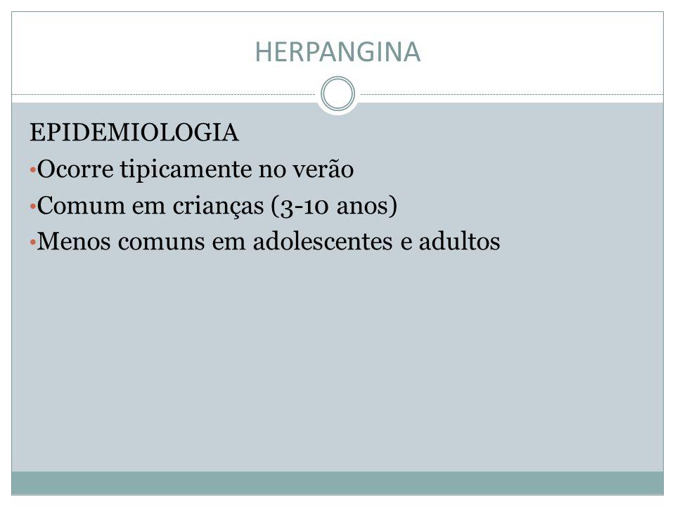 HERPANGINA EPIDEMIOLOGIA Ocorre tipicamente no verão Comum em crianças (3-10 anos) Menos comuns em adolescentes e adultos