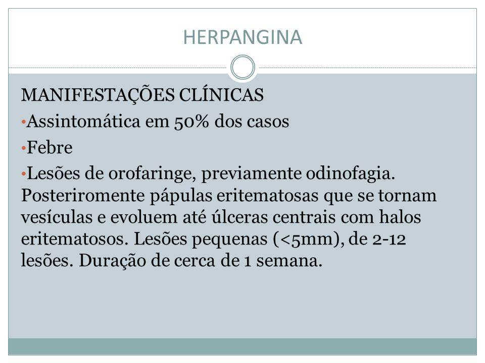 HERPANGINA MANIFESTAÇÕES CLÍNICAS Assintomática em 50% dos casos Febre Lesões de orofaringe, previamente odinofagia. Posteriromente pápulas eritematos